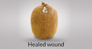 Kiwi defect: healed wound